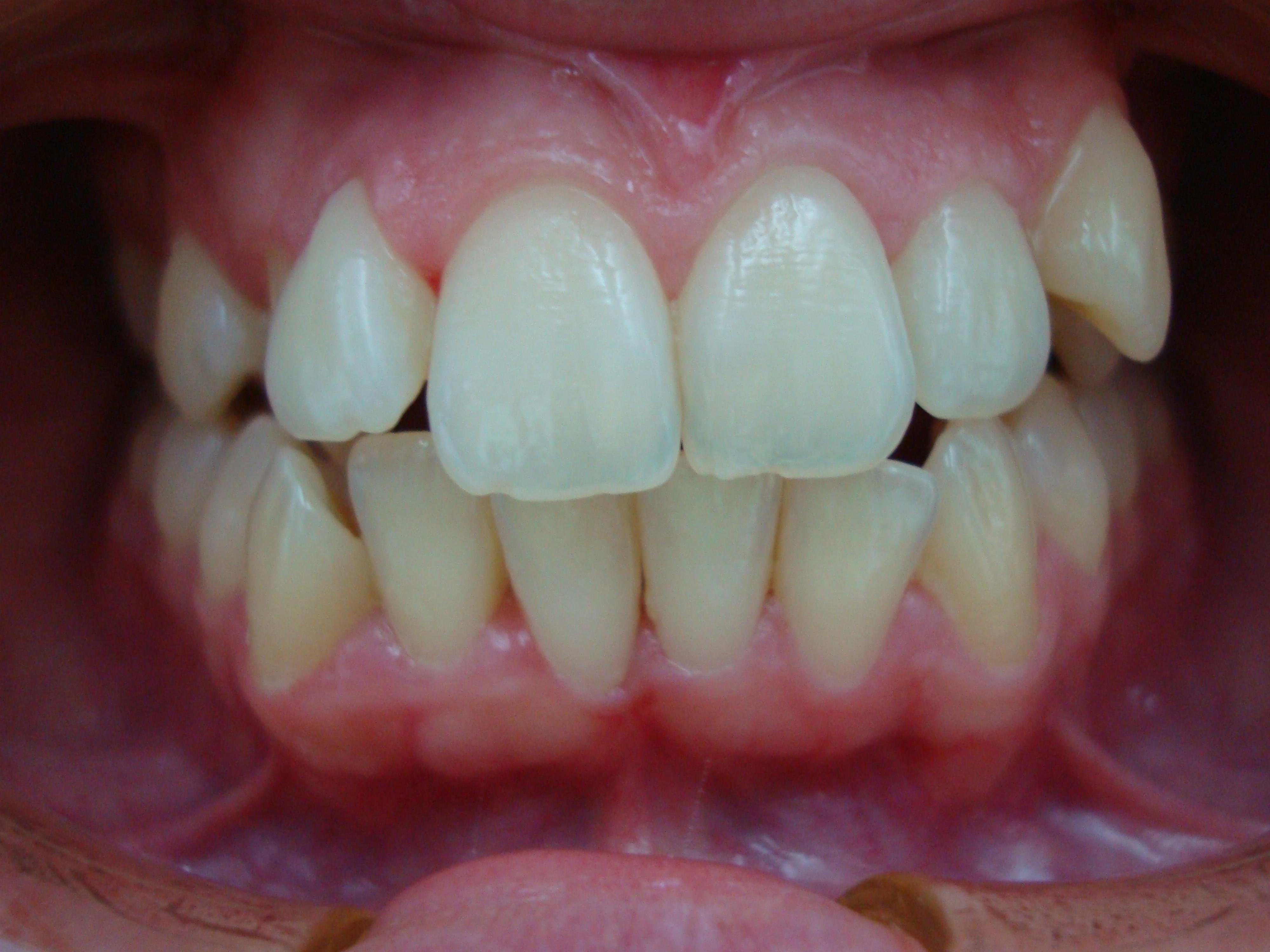 Caso de injerto- periodoncia