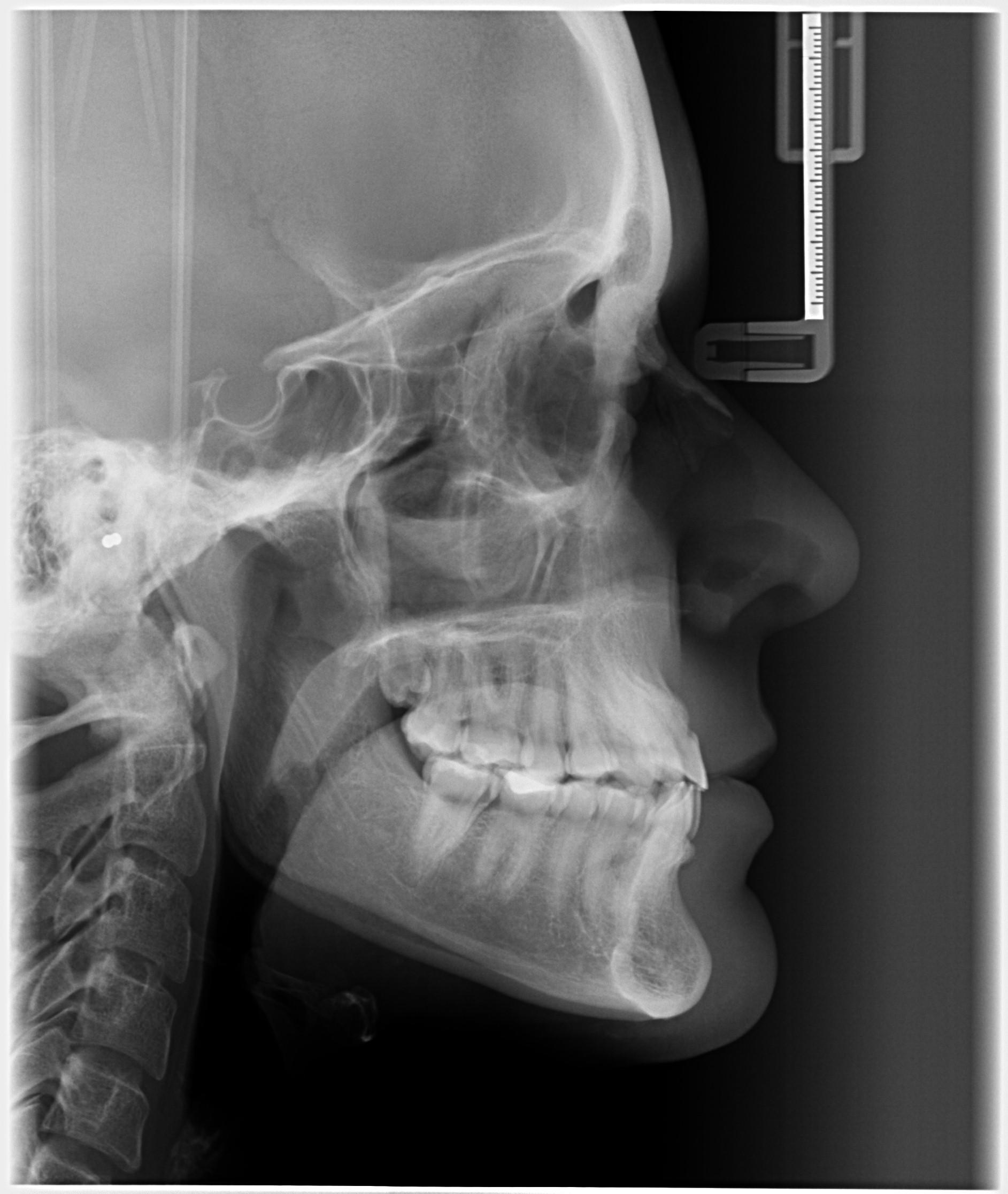 Telerradiografía Lateral del Cráneo