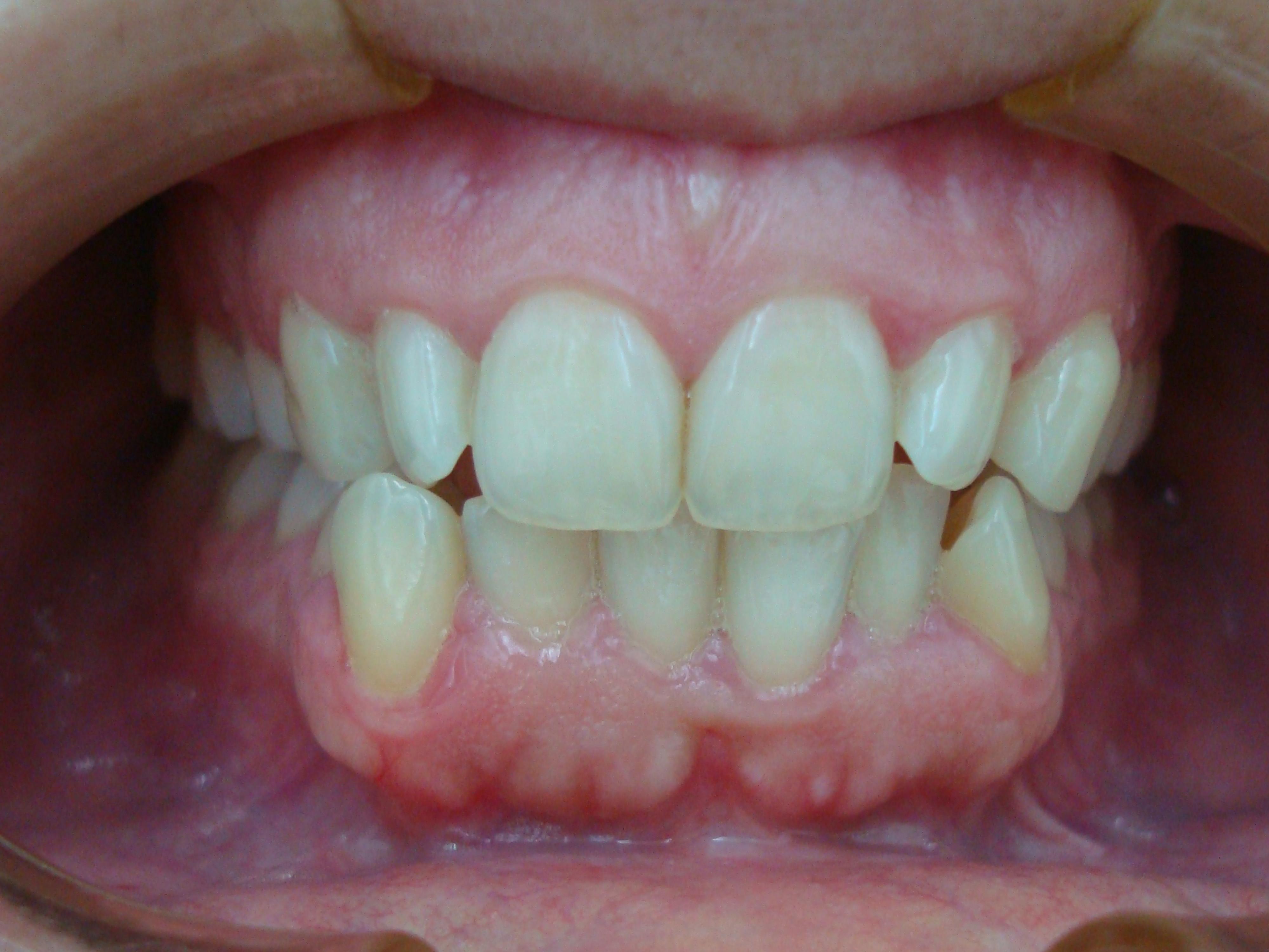 Ortodoncia invisible Invisalign en Alcázar de San Juan