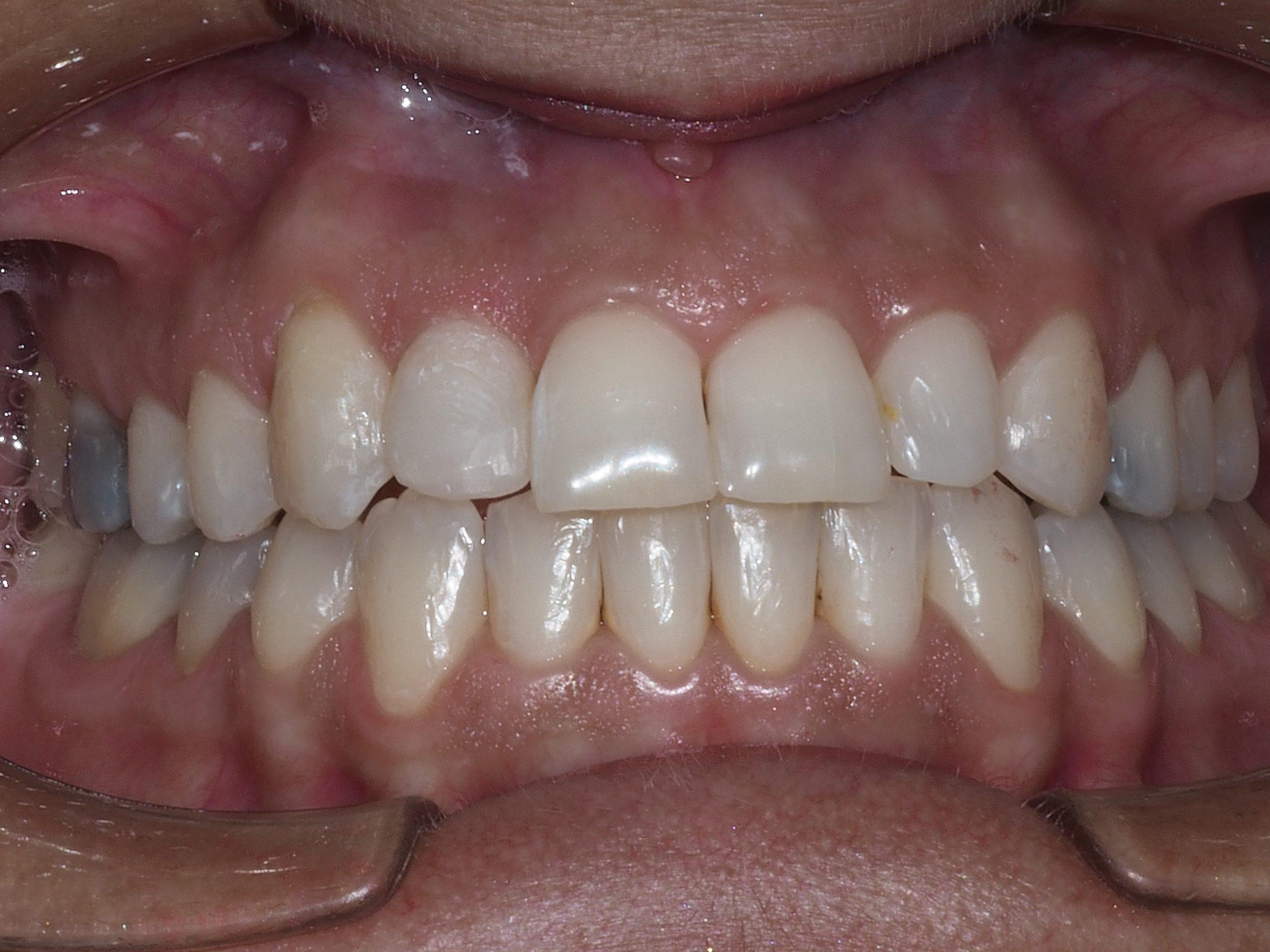 Clínica Dental Esther Cano Invisalign en Alcázar de San Juan