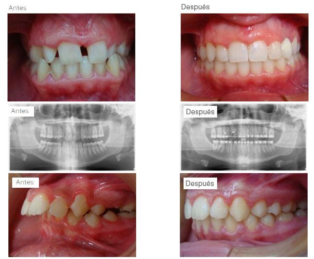 Ortodoncia-brackets-casos pacientes