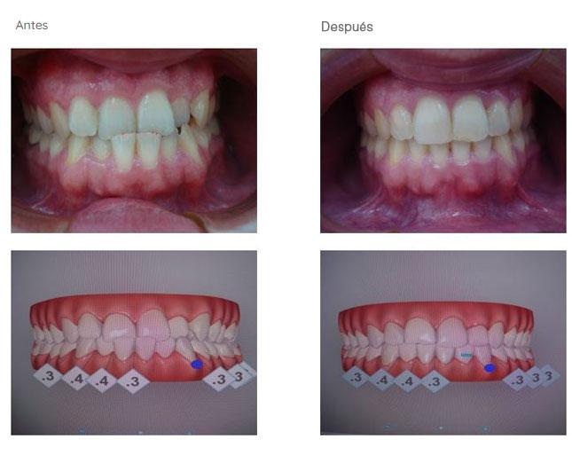 Ortodoncia-casos de pacientes