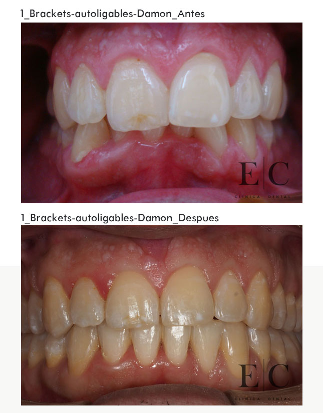 Ortodoncia-brackets-autoligables-Damon_1-2